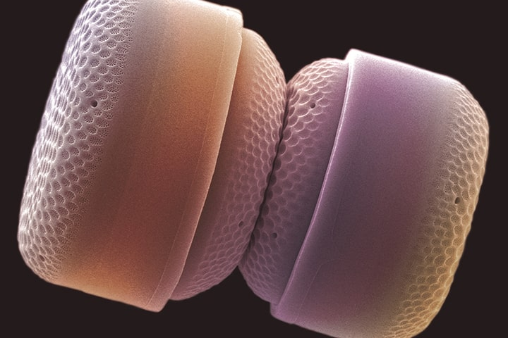 Nanoplancton silíceo / Foto: Marcos Rosado Iglesias